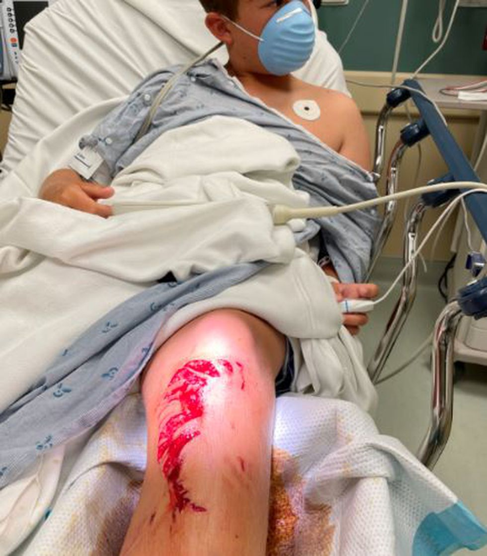 Eighth grader Parker Blanchette was bit by a shark while surfing off North Beach last week.