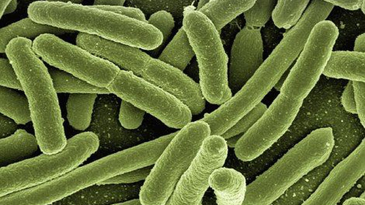 DOH officials found a new case of Legionnaire's disease last week.(Image: Pixabay)