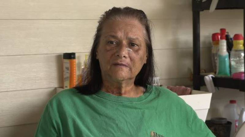 Paulette Lani Stabile 11 days after the attack