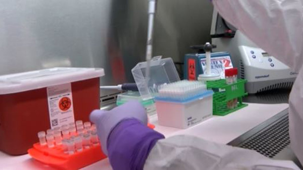 Lab testing for COVID-19/FILE