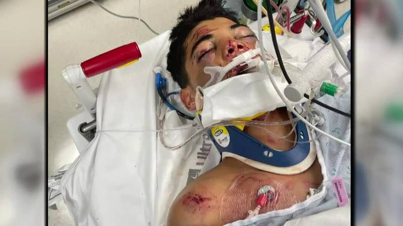 The family of a 14-year-old boy paralyzed in a car crash in Makaha nine days ago has sued the...