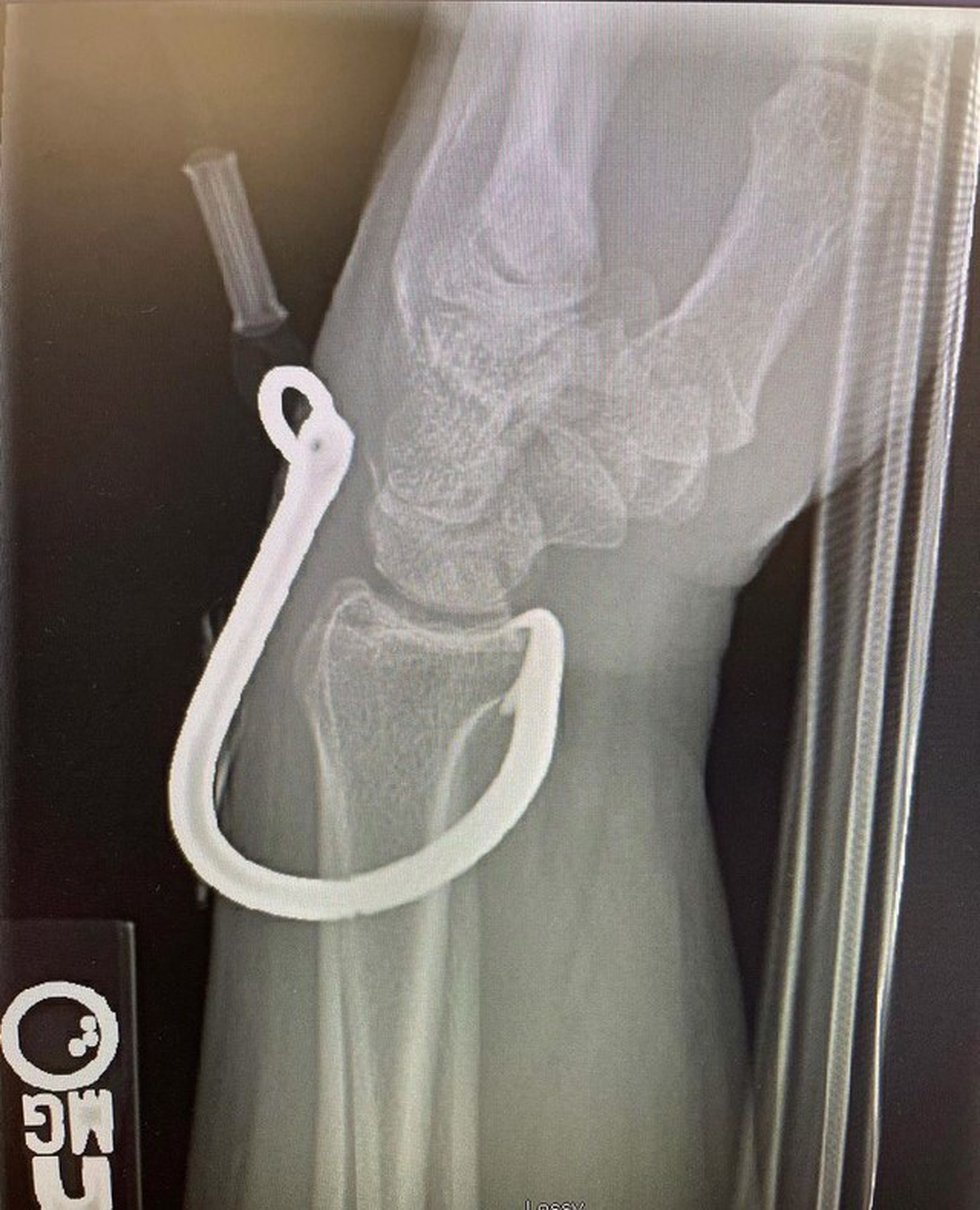 An x-ray shows the point of the hook sitting on the bone.