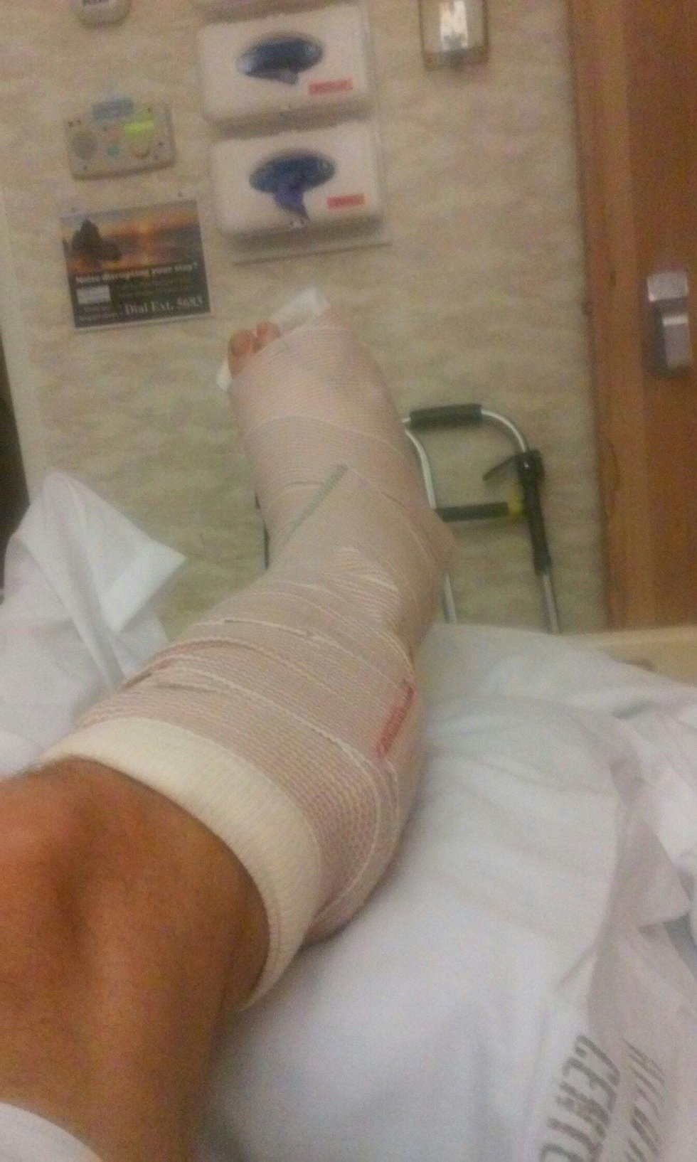 O'Leary's bandaged leg